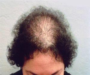 balding-woman