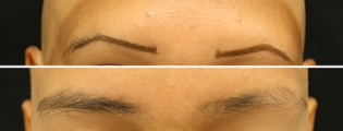 eyebrow-before-and-after